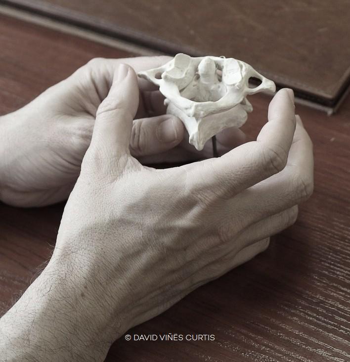 Maqueta del Atlas, primera vértebra cervical. Se puede alinera con el método AtlasPROfilax.