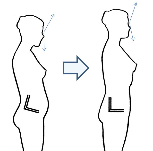 La alineación del Atlas con AtlasPROfilax mejora la postura y la visión.