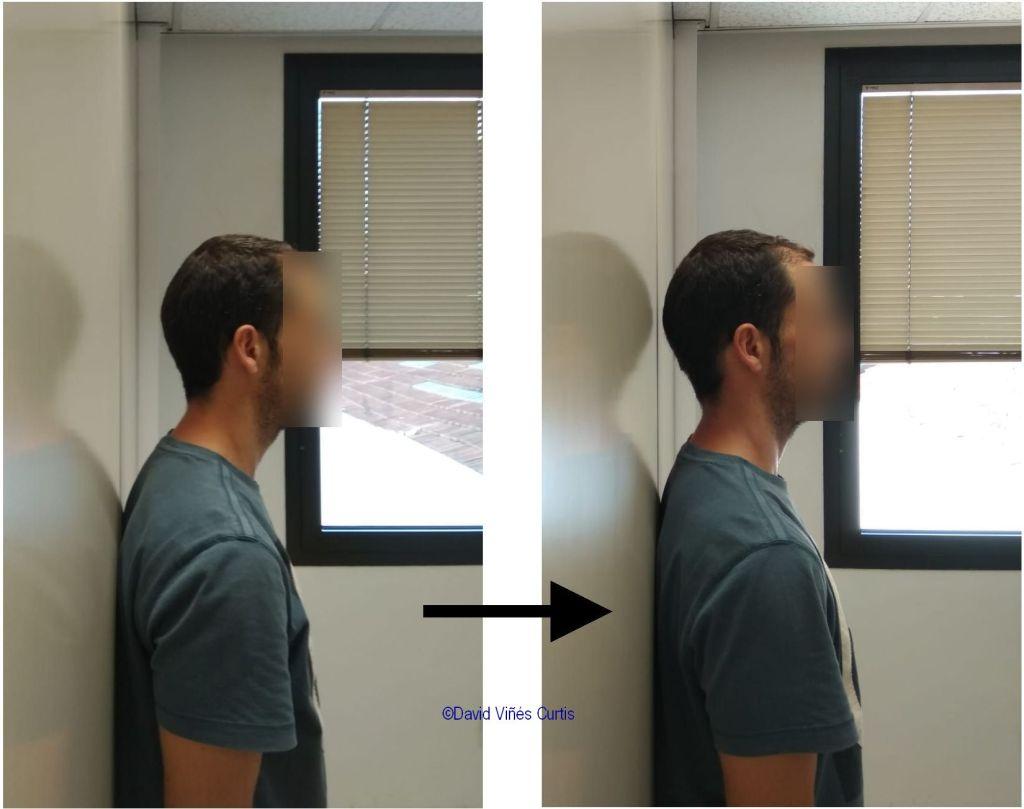 Gran mejora postural tras la alineación del Atlas con AtlasPROfilax®.